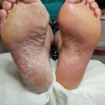 dry pedicure risultato